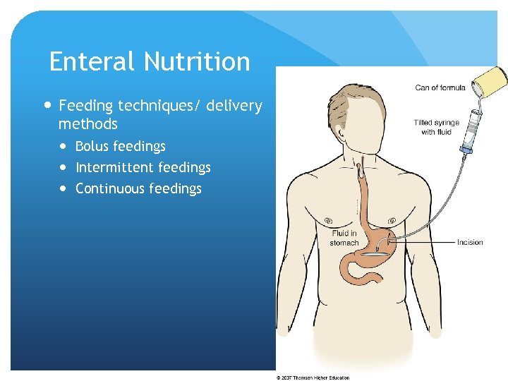 Enteral Nutrition Feeding techniques/ delivery methods Bolus feedings Intermittent feedings Continuous feedings © 2007