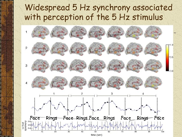 Widespread 5 Hz synchrony associated with perception of the 5 Hz stimulus Face Rings