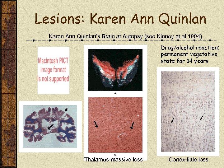 Lesions: Karen Ann Quinlan's Brain at Autopsy (see Kinney et al 1994) Drug/alcohol reaction;