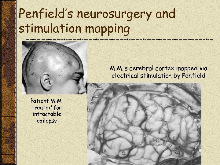 Penfield's neurosurgery and stimulation mapping M. M. 's cerebral cortex mapped via electrical stimulation