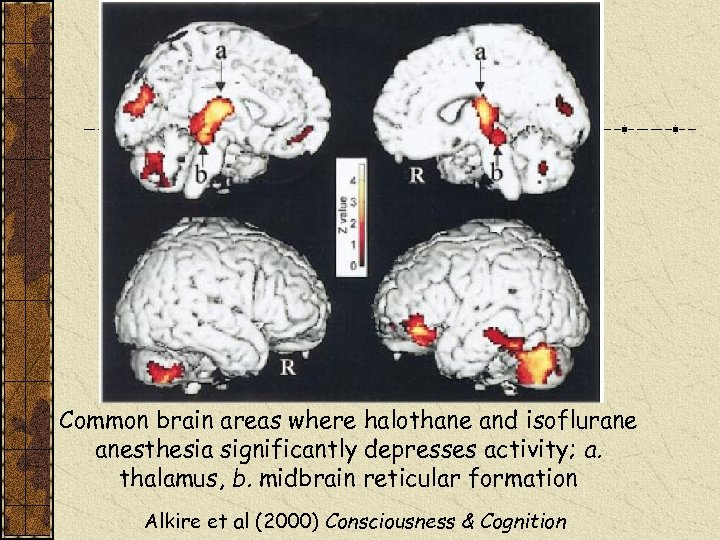 Common brain areas where halothane and isoflurane anesthesia significantly depresses activity; a. thalamus, b.