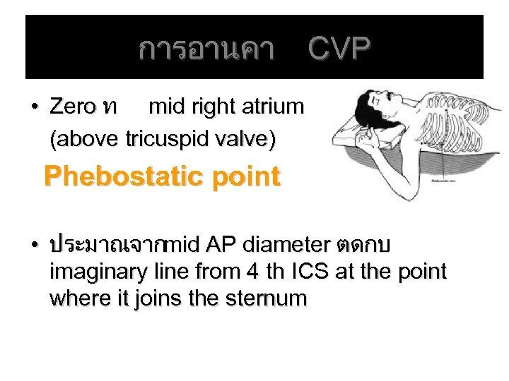 การอานคา CVP • Zero ท mid right atrium (above tricuspid valve) Phebostatic point •