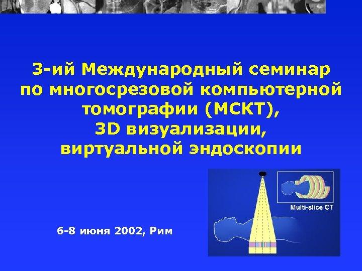 3 -ий Международный семинар по многосрезовой компьютерной томографии (МСКТ), 3 D визуализации, виртуальной эндоскопии