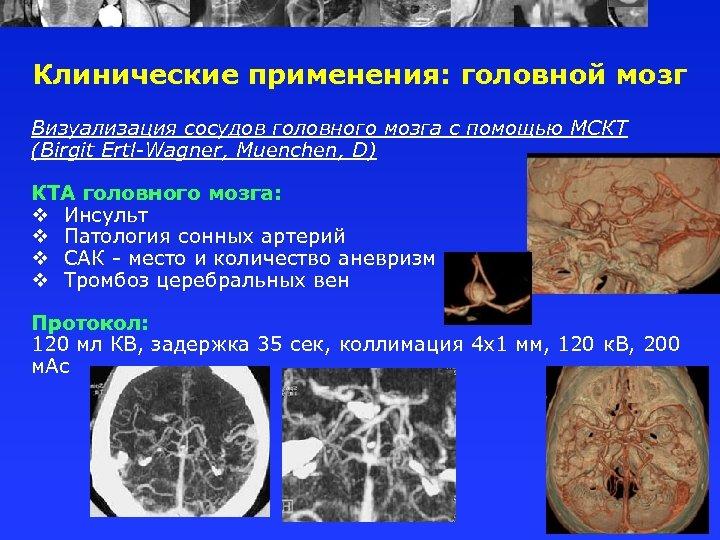 Клинические применения: головной мозг Визуализация сосудов головного мозга с помощью МСКТ (Birgit Ertl-Wagner, Muenchen,