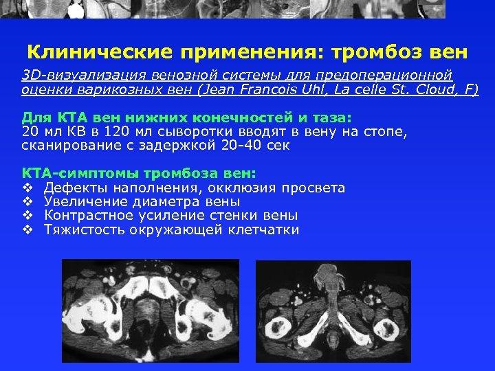 Клинические применения: тромбоз вен 3 D-визуализация венозной системы для предоперационной оценки варикозных вен (Jean