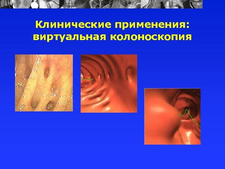 Клинические применения: виртуальная колоноскопия