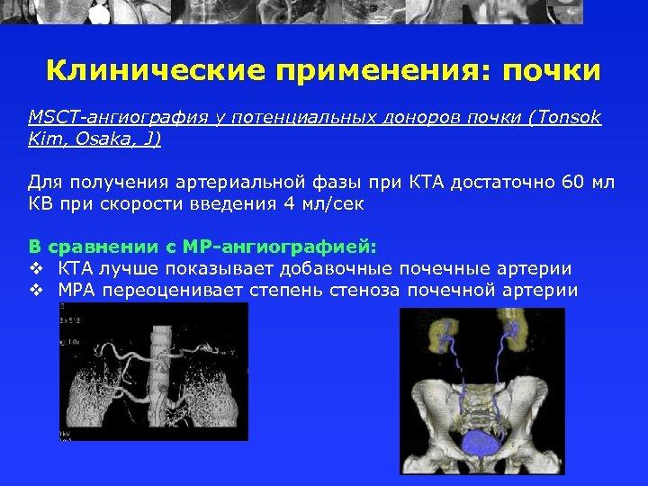 Клинические применения: почки MSCT-ангиография у потенциальных доноров почки (Tonsok Kim, Osaka, J) Для получения