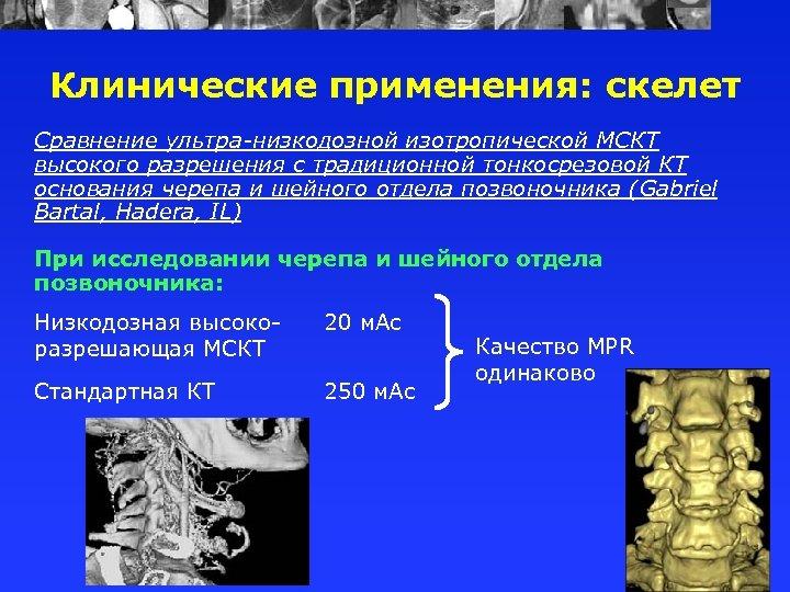 Клинические применения: скелет Сравнение ультра-низкодозной изотропической МСКТ высокого разрешения с традиционной тонкосрезовой КТ основания