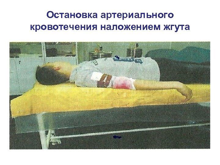 Остановка артериального кровотечения наложением жгута