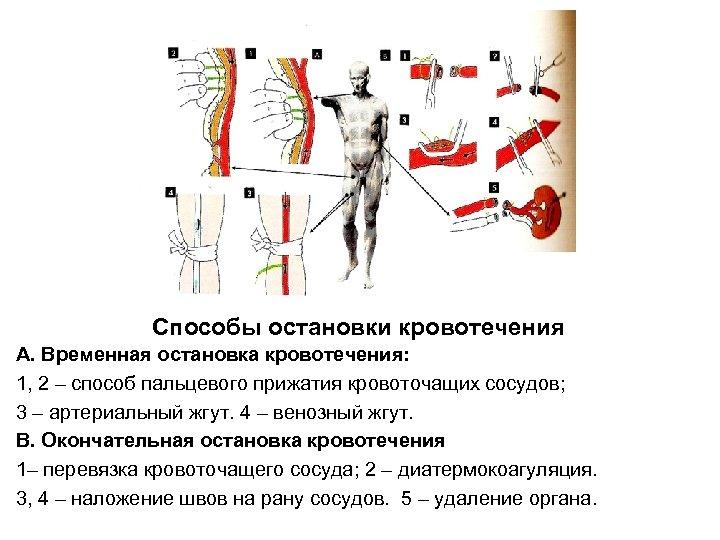 Способы остановки кровотечения А. Временная остановка кровотечения: 1, 2 – способ пальцевого прижатия кровоточащих
