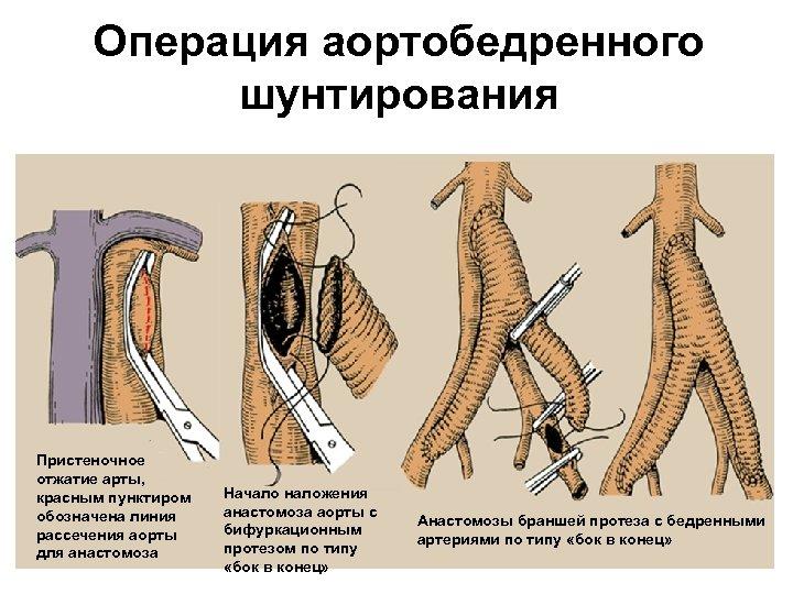 Операция аортобедренного шунтирования Пристеночное отжатие арты, красным пунктиром обозначена линия рассечения аорты для анастомоза
