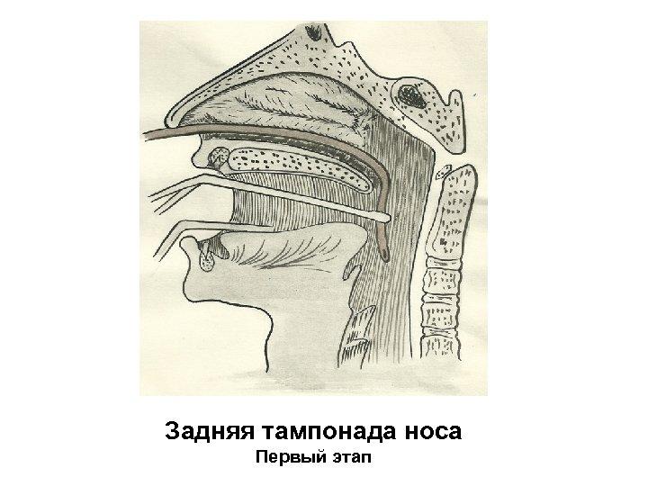 Задняя тампонада носа Первый этап