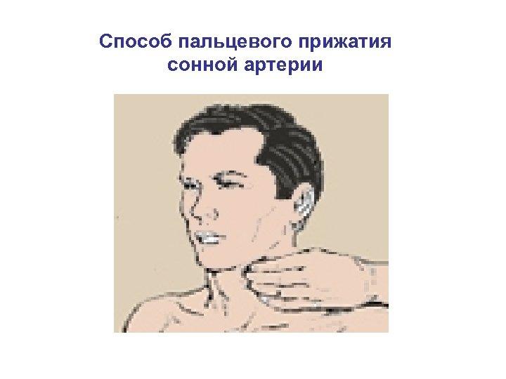 Способ пальцевого прижатия сонной артерии