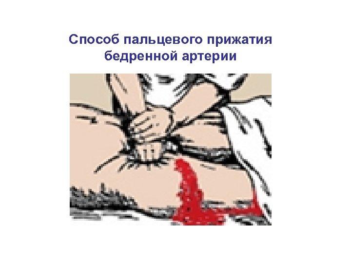 Способ пальцевого прижатия бедренной артерии