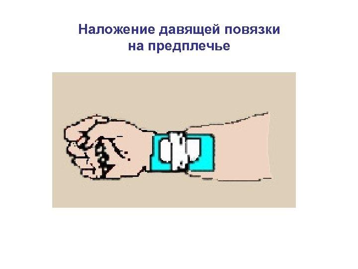 Наложение давящей повязки на предплечье