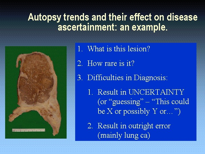 Autopsy trends and their effect on disease ascertainment: an example. 1. 1. What is
