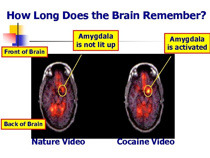 How Long Does the Brain Remember? Front of Brain Amygdala is not lit up