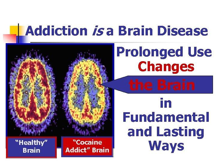 "Addiction is a Brain Disease Prolonged Use Changes the Brain ""Healthy"" Brain ""Cocaine Addict"""