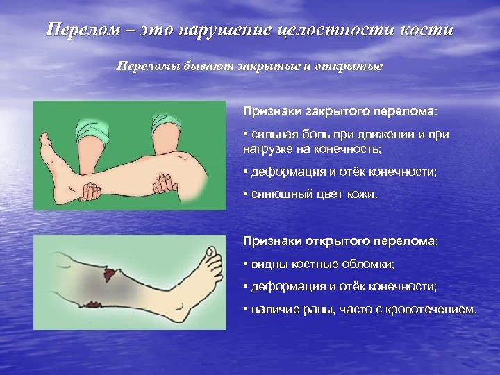 Перелом – это нарушение целостности кости Переломы бывают закрытые и открытые Признаки закрытого перелома: