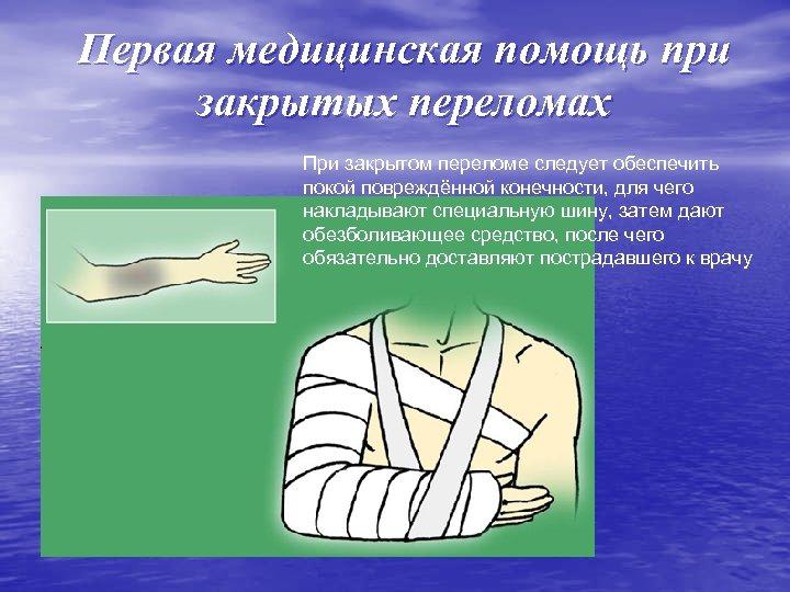 Первая медицинская помощь при закрытых переломах При закрытом переломе следует обеспечить покой повреждённой конечности,