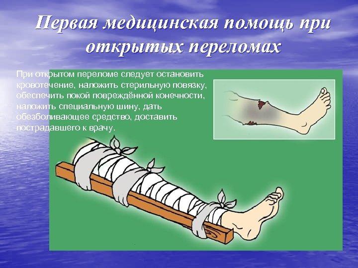 Первая медицинская помощь при открытых переломах При открытом переломе следует остановить кровотечение, наложить стерильную