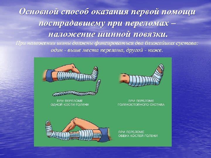 Основной способ оказания первой помощи пострадавшему при переломах – наложение шинной повязки. При наложении