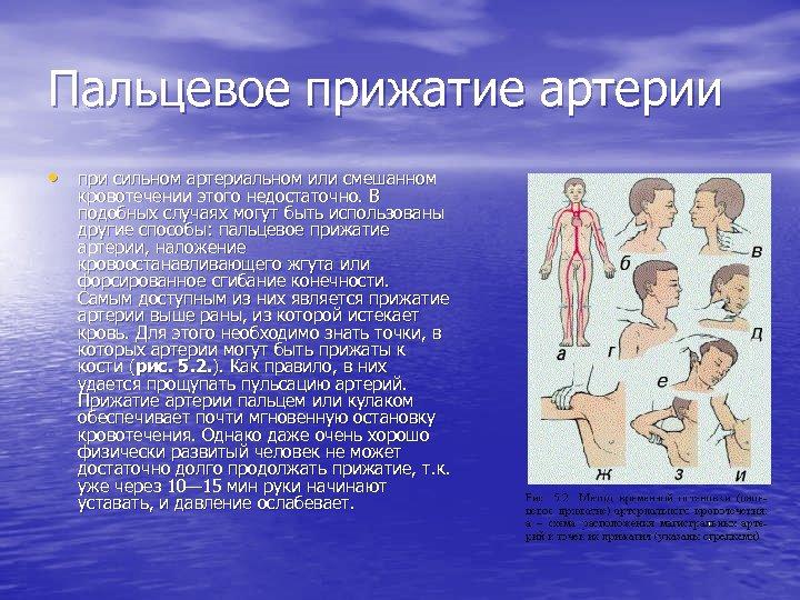 Пальцевое прижатие артерии • при сильном артериальном или смешанном кровотечении этого недостаточно. В подобных