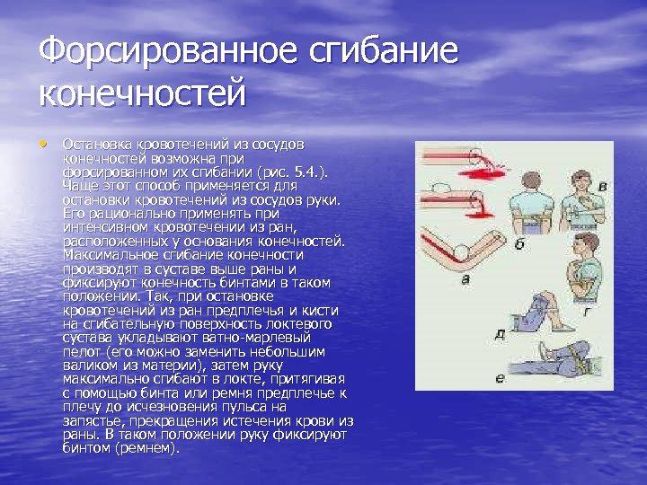Форсированное сгибание конечностей • Остановка кровотечений из сосудов конечностей возможна при форсированном их сгибании