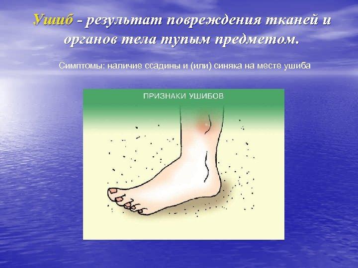 Ушиб - результат повреждения тканей и органов тела тупым предметом. Симптомы: наличие ссадины и