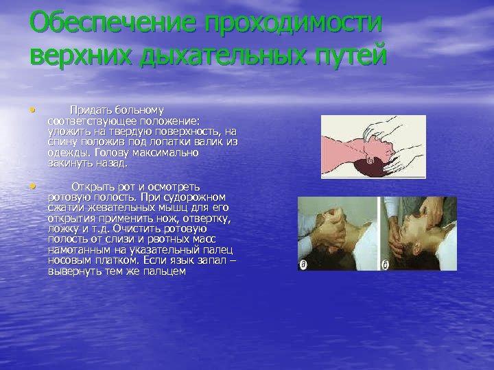 Обеспечение проходимости верхних дыхательных путей • Придать больному соответствующее положение: уложить на твердую поверхность,