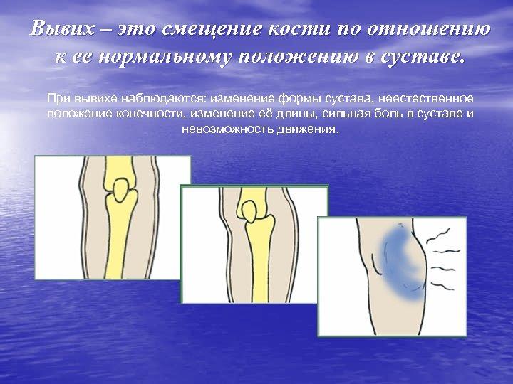Вывих – это смещение кости по отношению к ее нормальному положению в суставе. При