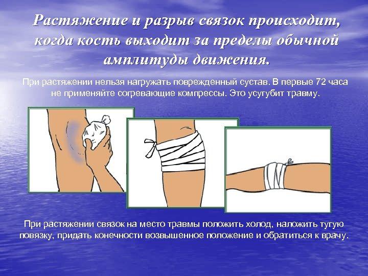 Растяжение и разрыв связок происходит, когда кость выходит за пределы обычной амплитуды движения. При