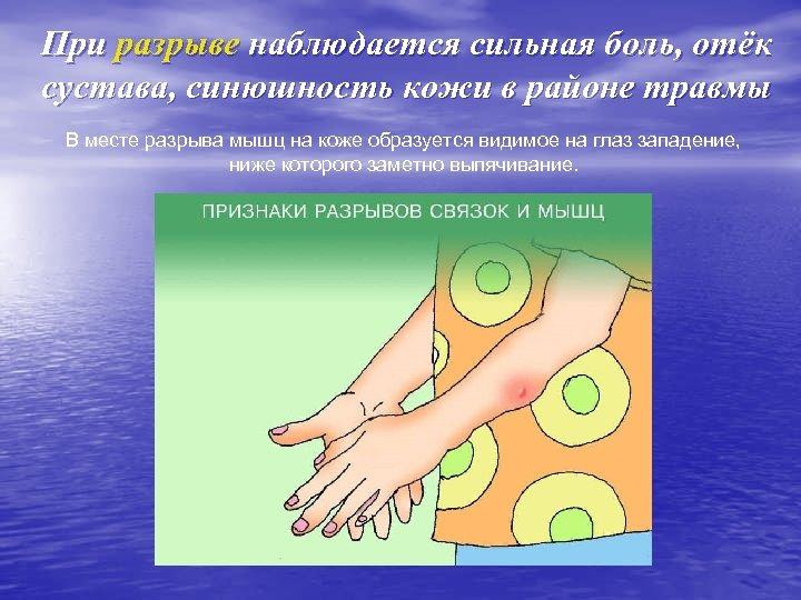 При разрыве наблюдается сильная боль, отёк сустава, синюшность кожи в районе травмы В месте