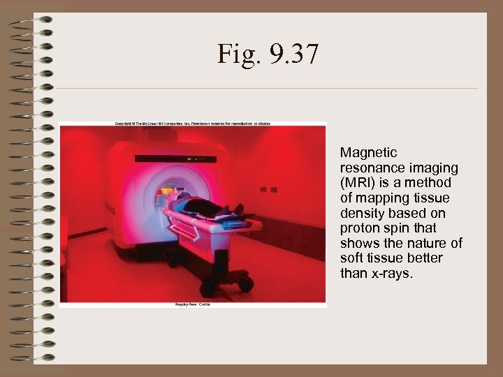 Fig. 9. 37 Magnetic resonance imaging (MRI) is a method of mapping tissue density