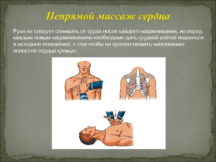 Непрямой массаж сердца Руки не следует отнимать от груди после каждого надавливания, но перед