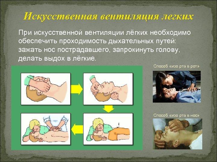 Искусственная вентиляция легких При искусственной вентиляции лёгких необходимо обеспечить проходимость дыхательных путей: зажать нос