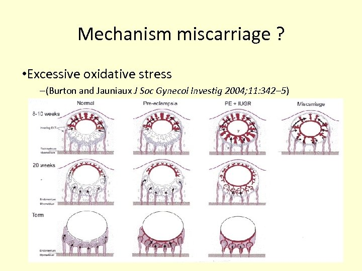 Mechanism miscarriage ? • Excessive oxidative stress –(Burton and Jauniaux J Soc Gynecol Investig
