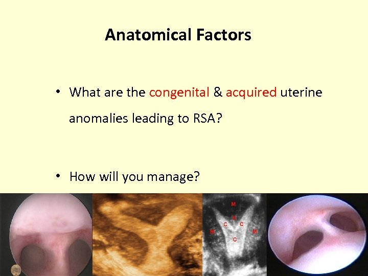 Anatomical Factors • What are the congenital & acquired uterine anomalies leading to RSA?