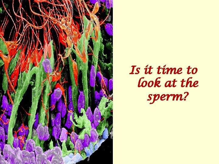 Is it time to look at the sperm?