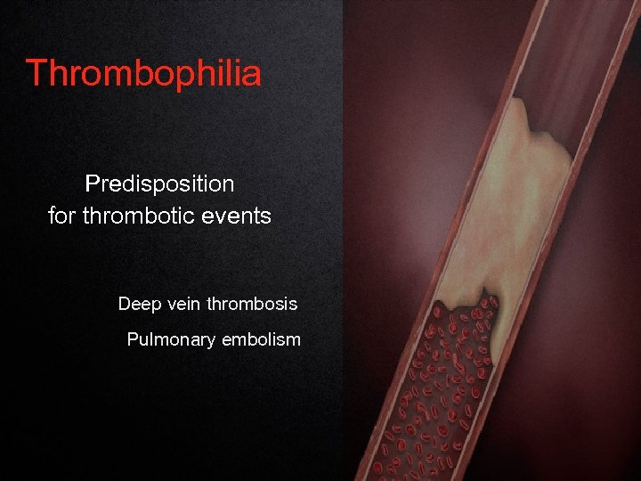 Thrombophilia Predisposition for thrombotic events Deep vein thrombosis Pulmonary embolism