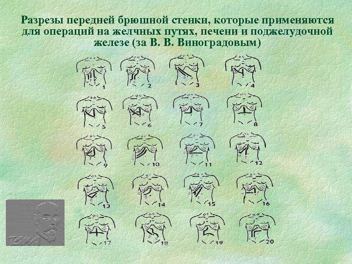 Разрезы передней брюшной стенки, которые применяются для операций на желчных путях, печени и поджелудочной