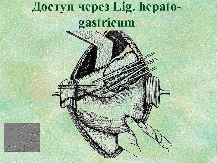 Доступ через Lig. hepatogastricum