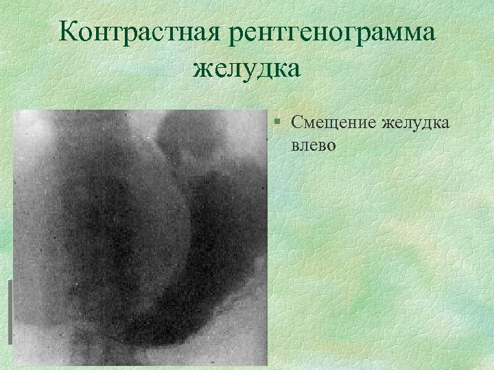 Контрастная рентгенограмма желудка § Смещение желудка влево
