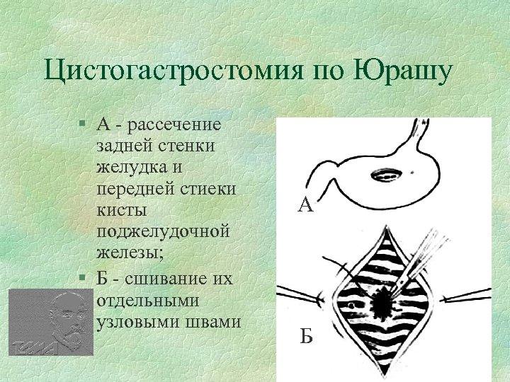 Цистогастростомия по Юрашу § А - рассечение задней стенки желудка и передней стиеки кисты
