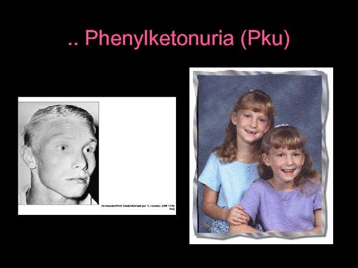 . . Phenylketonuria (Pku)