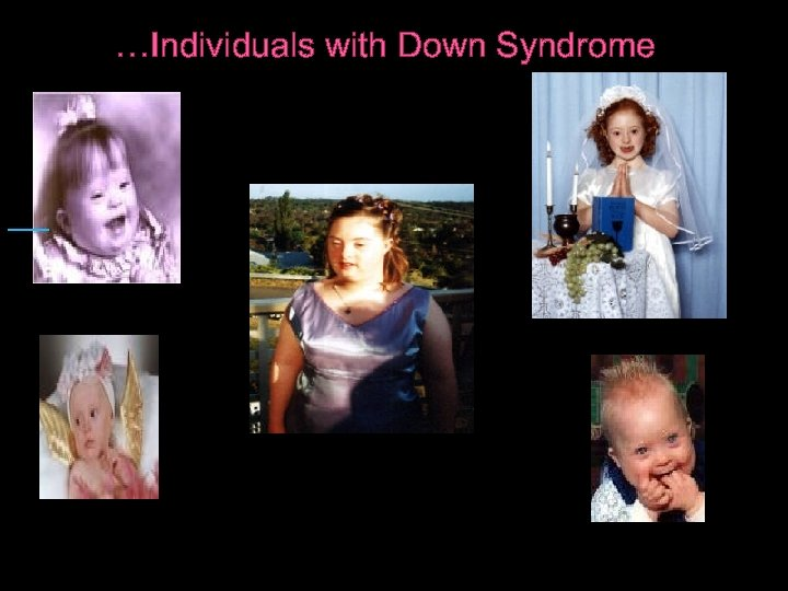 …Individuals with Down Syndrome