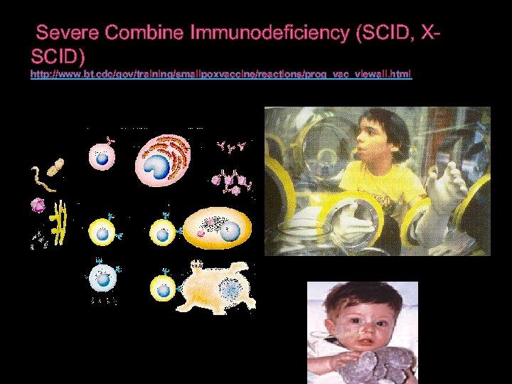 Severe Combine Immunodeficiency (SCID, XSCID) http: //www. bt. cdc/gov/training/smallpoxvaccine/reactions/prog_vac_viewall. html