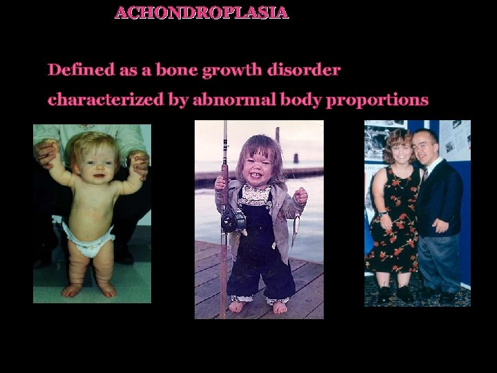ACHONDROPLASIA Defined as a bone growth disorder characterized by abnormal body proportions