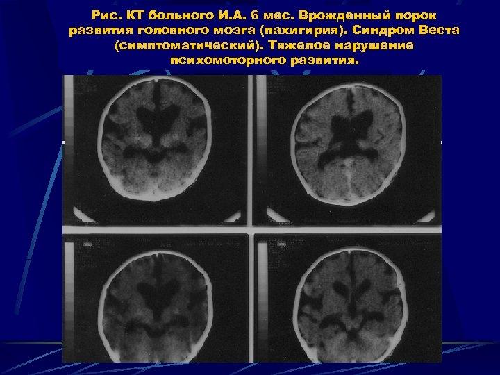 Рис. КТ больного И. А. 6 мес. Врожденный порок развития головного мозга (пахигирия). Синдром