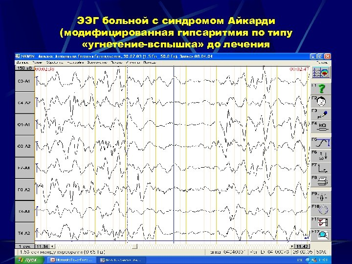 ЭЭГ больной с синдромом Айкарди (модифицированная гипсаритмия по типу «угнетение-вспышка» до лечения